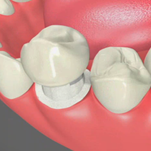Dental Crowns San Bernardino California