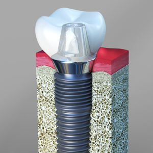 Dental Implants San Bernardino California