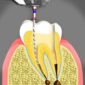 Root Canal Treatment San Bernardino California