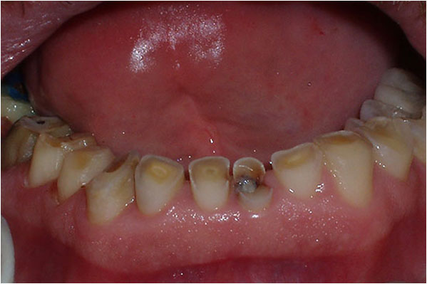 Dental Crowns and Bridges Before